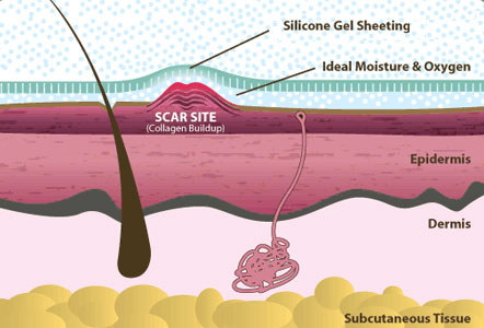 Scar Site - Silicone Gel Sheeting