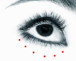 "Photo showing ""tear trough"" area under the eye."
