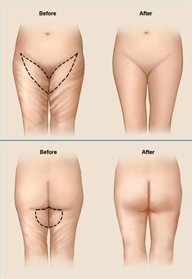 Surgical Incisions for a Medial or Inner Thigh Lift
