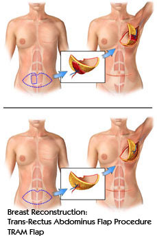 Breast Reconstruction: Trans-Rectus Abdominus Flap Procedure - TRAM Flap