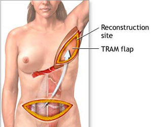 TRAM Flap - Breast Reconstruction Site