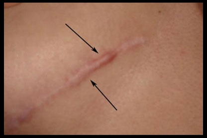 Hypertrophic Scar from breast reduction