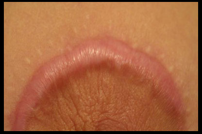 Keloid Scar from Breast Lift